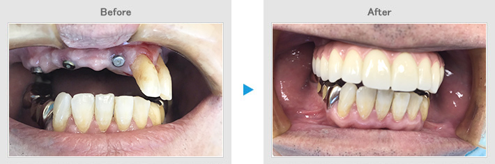 implant05